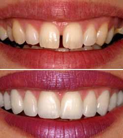 lentes_contacto_dentarias