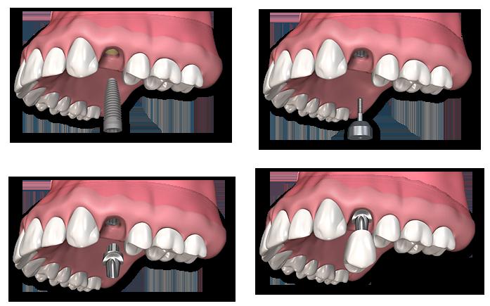 implante_unitario