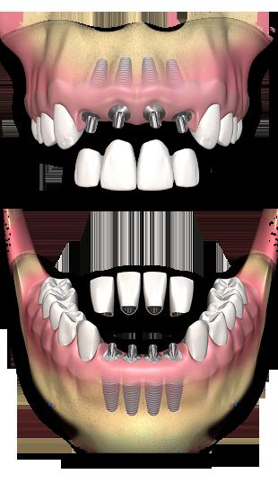 implantes_varios_dentes