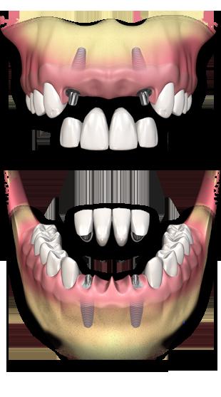 ponte_sobre_implante