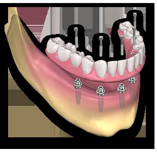 protese_fixa_sobre_implantes