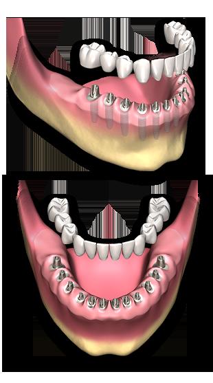 protese_fixa_sobre_implantes_sem perda_ossea