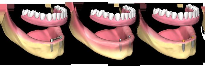 protese_removivel_sobre_implantes