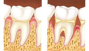doenca_periodontal