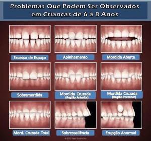 problemas_ortodonticos