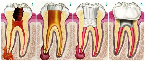 Endodontia / Desvitalização Dentária - Clínica Dentária do Marques - O seu  dentista em Lisboa